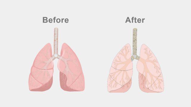 iPad版イラストレーターを使って描いた肺のイラスト
